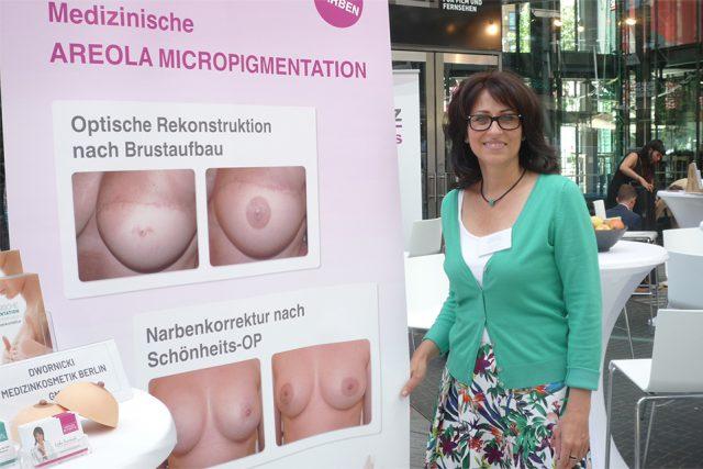 Für Interessierte: Informationen zur medizinischen Pigmentierung der Brustwarze nach einem Brustaufbau (Foto: Iris Meumann)